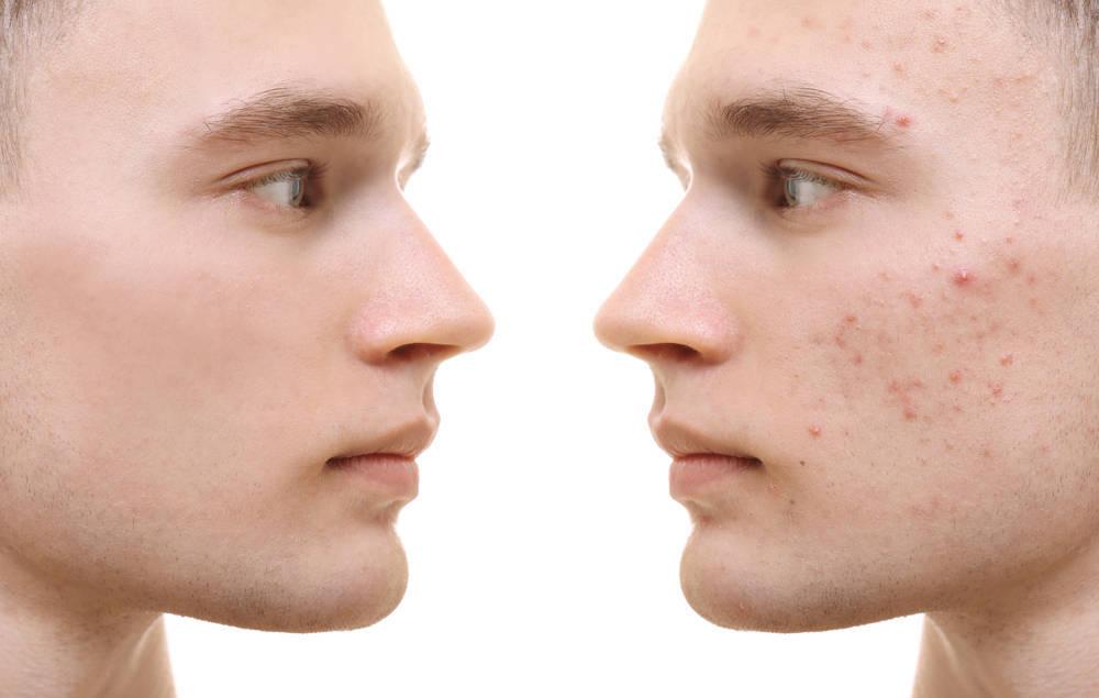 El acné y su tratamiento