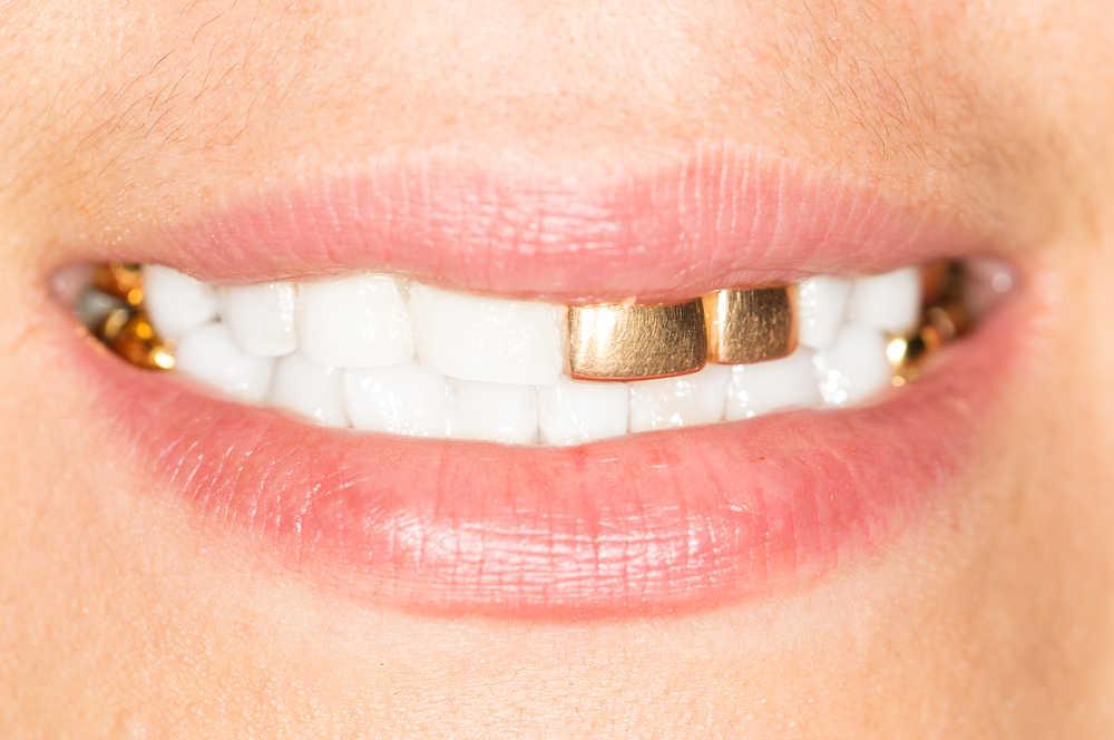 Los dientes de oro pueden ser un peligro para la salud